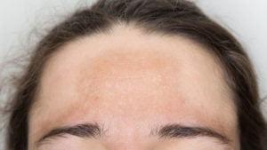 Skin Pigmentation Forehead