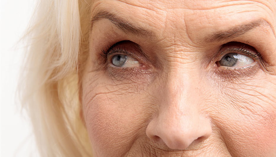 Woman with Wrinkles on Forehead, Eyes and Lips
