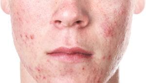 man with acne skin dermatology